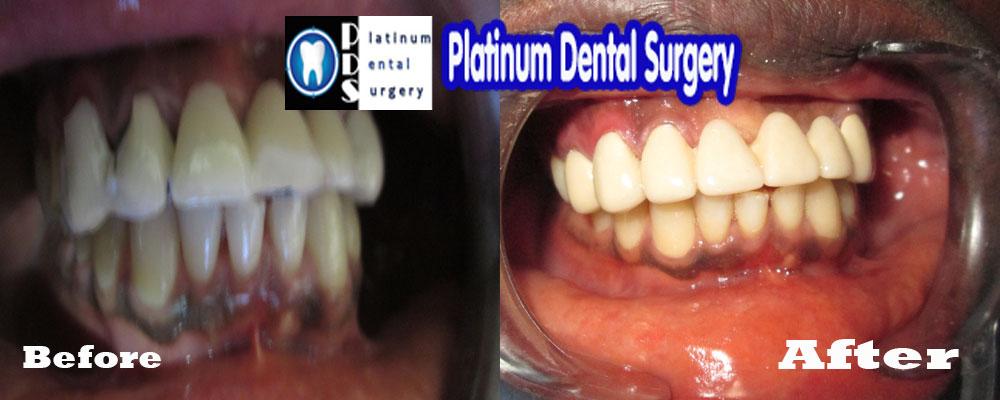 8 unit dental bridge