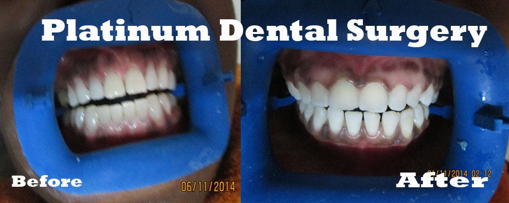 Platinum-dental-surgery-crown