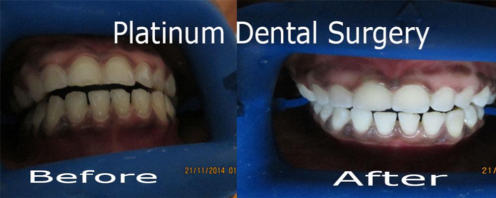 Teeth-whiteening-2