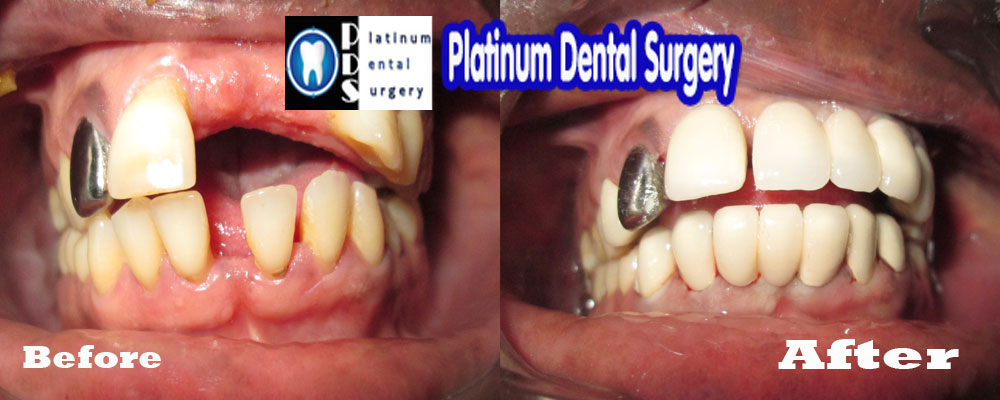 dental bridge 3