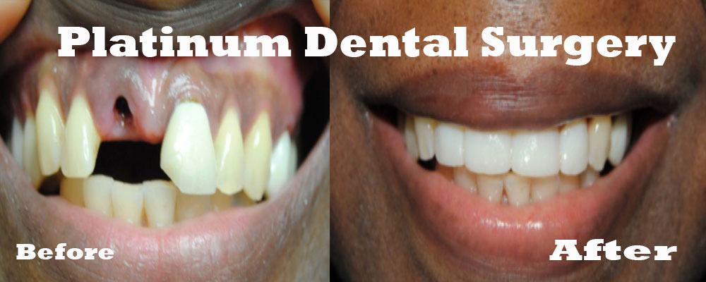 dental bridge 4