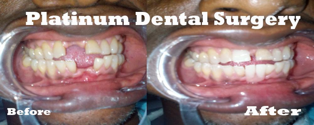 dental-denture