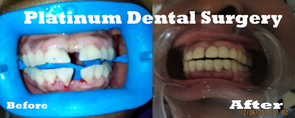 full mouth dental crown reconstruction