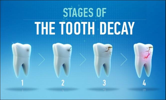 dental caries Capture