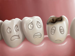 dental-cavity-causes-discomfort-pain