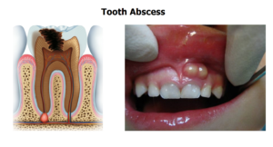 dental-cavity-infections-abscess