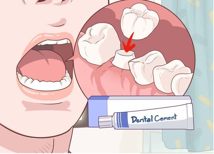 Как приклеить коронку к зубу в домашних условиях