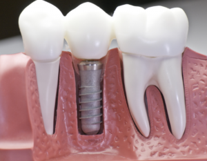 successful-dental-implant-surgery